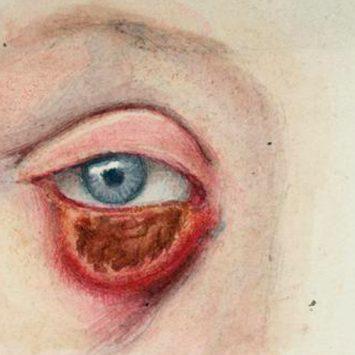 Sobre el sentido de la vista